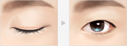 What is Monolid Ptosis Correction?