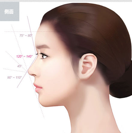 What is deviated nose surgery?